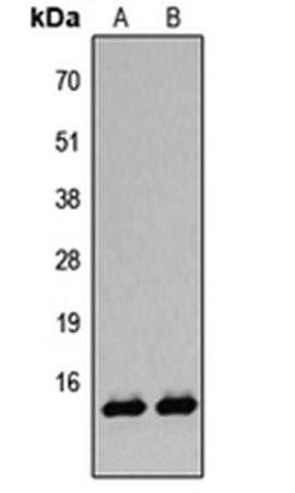 Western blot analysis of A431 TSA-treated (Lane1), HeLa TSA-treated (Lane2) whole cell using Histone H2B (AcK12) antibody