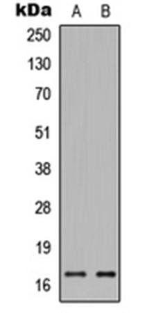 Western blot analysis of HEK293T (Lane1), HeLa (Lane2) whole cell using Histone H3 (phospho-S28) antibody