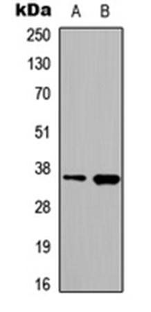 Western blot analysis of HeLa (Lane1), PC3 (Lane2) whole cell using hnRNP A2/B1 antibody