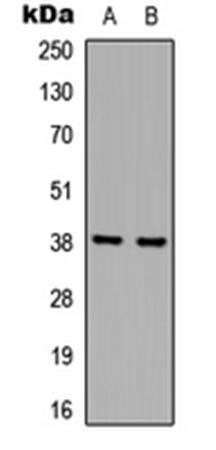 Western blot analysis of A431 (Lane1), Jurkat (Lane2) whole cell using hnRNP D0 antibody