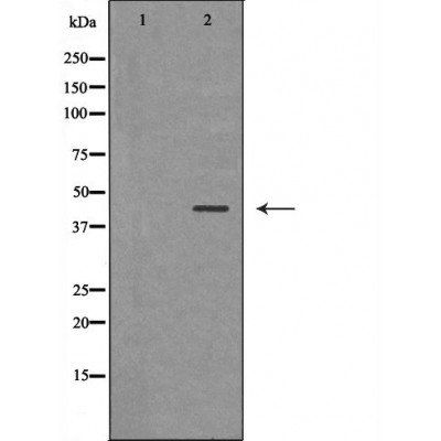 Western blot analysis of various cell lines using HSD17B2 antibody