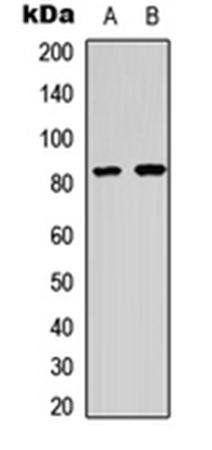 Western blot analysis of HeLa (Lane1), COLO205 (Lane2) whole cell using HSF1 (phospho-S303) antibody
