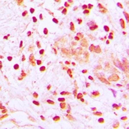 Immunohistochemical analysis of formalin-fixed and paraffin-embedded human lung cancer tissue using HSF1 antibody