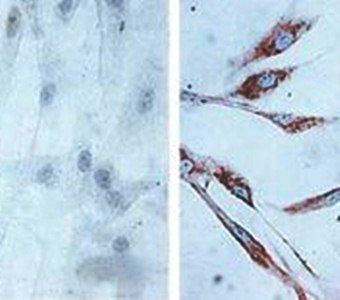 Immunohistochemical analysis of formalin-fixed and paraffin embedded human skin fibroblasts (Left: control, Right: 24 hours after 7th passage of senescence) using Hsp60 antibody