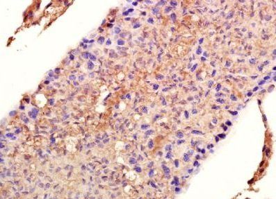 Immunohistochemical analysis of formalin-fixed paraffin embedded human colon tissue using HSP90 alpha antibody (dilution at 1:200)