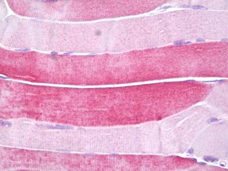 Immunohistochemical staining of paraffin embedded human skeletal muscle tissue using HSPB6 antibody (primary antibody at 1:200)