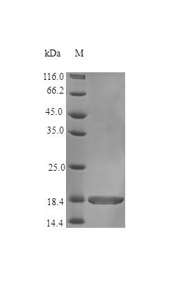 SDS-PAGE analysis of Human AIMP1 protein (Active)