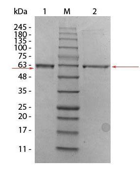 Western blot analysis of Human Recombinant Protein unreduced (Lane1), prestained MW markers (Lane2), reduced. Load: 1 ug per lane (Lane3) using Human AKT2 (phosphatase treated) protein