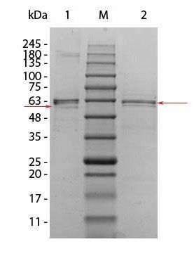 Western blot analysis of Human Recombinant Protein unreduced (Lane1), prestained MW markers (Lane2), reduced. Load: 1 ug per lane (Lane3) using Human AKT2 protein