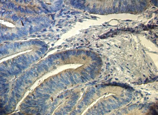 IHC-P analysis of human colonic adenocarcinoma tissue using CD133 antibody (Primary antibody at 1:100)