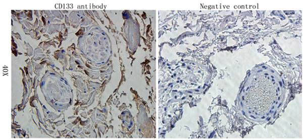 Immunohistochemical analysis of formalin-fixed and paraffin embedded human muscle tissue using CD133 antibody (Primary antibody diluted to 1:200)