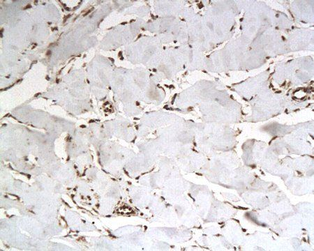 Immunohistochemical analysis of paraffin-embedded keloid tissue using IASPP antibody
