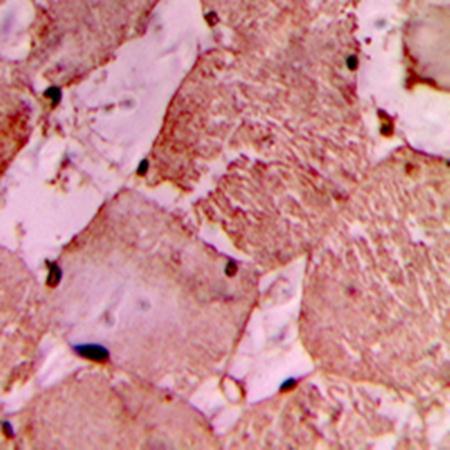 Immunohistochemical analysis of formalin-fixed and paraffin-embedded human heart tissue using IDOL antibody