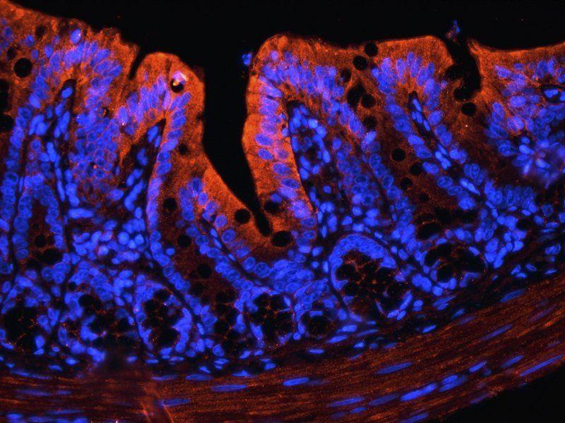 IF analysis of rat colon tissue using IGF1 antibody (2.5 ug/ml)