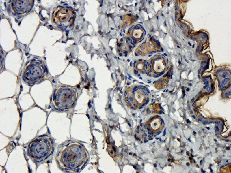 Immunohistochemical staining of mouse skin tissue using IGF1 antibody (2.5 ug/ml)