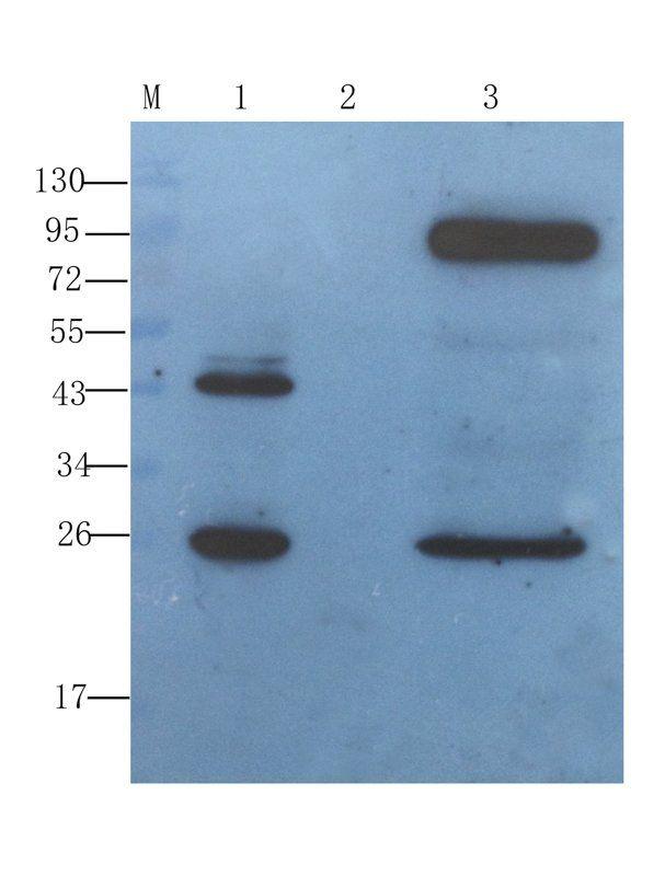 WB analysis of  rat stomach (lane 1), rat small intestines (lane 2), rat large intestines (lane 3) using IGF1 antibody (1 ug/ml)