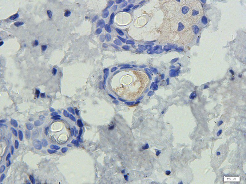 IHC-P staining of rat skin tissue using IL12 antibody (dilution at 1:100)