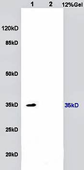 Western blot analysis of rat kidney lysates (Lane1), rat brain lysates lysates (Lane2) dilution at:1:200 using IL17 Receptor B antibody