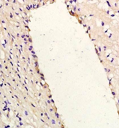 Immunohistochemical analysis of formalin fixed and paraffin embedded rabbit carotid artery using IL8 antibody