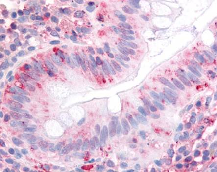 Immunohistochemical staining of paraffin embedded human colon tissue using Integrin Alpha 2 antibody (primary antibody at 1:200)