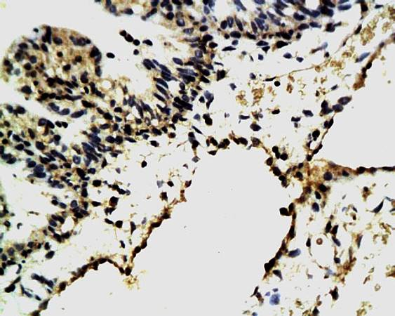 IHC-P of rats eyeball tissue Integrin Alpha 3 + Beta 1 antibody at 1:300)