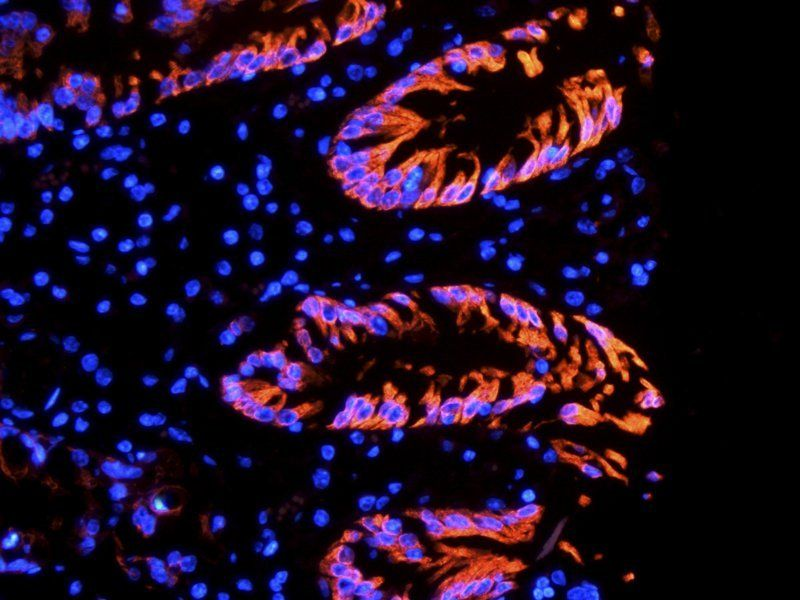 IF image of pig large intestines tissue using Integrin alpha 5 antibody (primary antibody at 1:500)