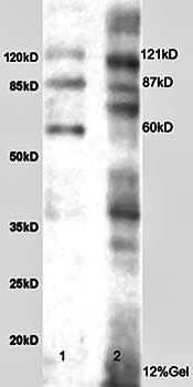 Western blot analysis of rat brain lysates (Lane1 30ug) and rat liver lysates (Lane2 30ug) using Integrin alpha 5 beta 3 antibody