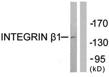 Western blot analysis of extracts from Jurkat cells using Integrin beta1 antibody