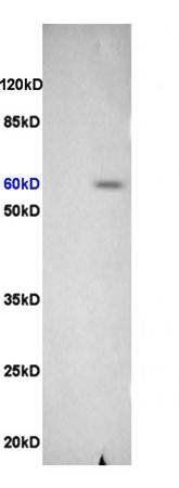 Western blot analysis of rat brain lysates(Lane1),rat heart lysates(Lane2) using Integrin beta 3 antibody
