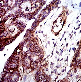 Immunohistochemical analysis of formalin fixed and paraffin-embedded ovarian cancer tissues using ITGB1 antibody