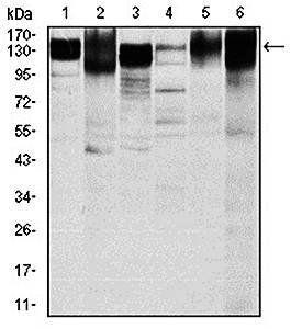 Western blot analysis of Hela (Lane1), HepG2 (Lane2), A549 (Lane3), Jurkat(Lane4), L1210 (Lane5) and Cos7 (Lane6) cell lysate using ITGB1 antibody