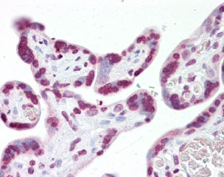 Immunohistochemical staining of paraffin embedded human placenta tissue using JMJD6 antibody (primary antibody at 1:200)