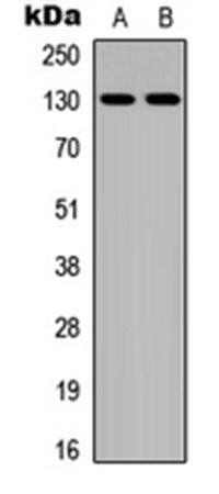 Western blot analysis of Jurkat (Lane1), MCF7 (Lane2) whole cell using JMY antibody