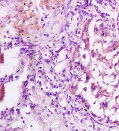 Immunohistochemical analysis of formalin fixed and paraffin embedded human lung carcinoma using Jnk1/3 antibody
