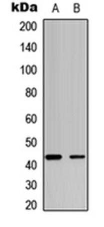 Western blot analysis of HeLa (Lane1), MCF7 (Lane2) whole cell using JUNB (phospho-S259) antibody