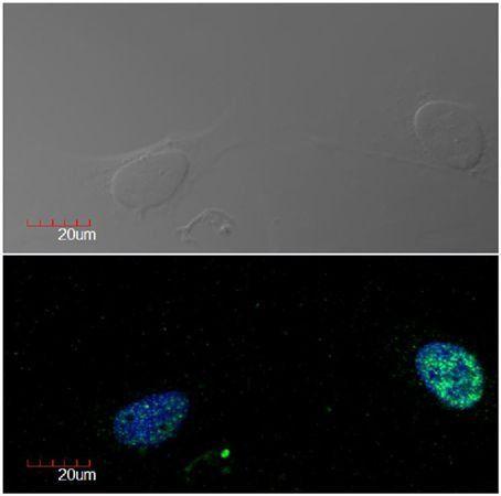 Immunofluorescence analysis of U2OS cell line (human osteosarcoma) using Ki-67 antibody
