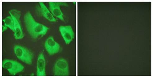 Confocal immunofluorescence analysis of HeLa cells using Kir5.1 antibody