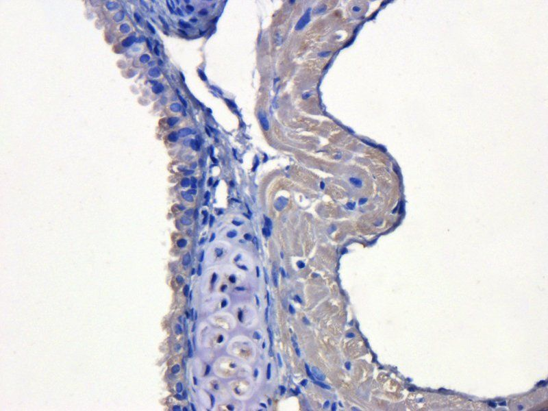 IHC-P staining of mouse lung tissue using KLF2 antibody (dilution at 1:200)