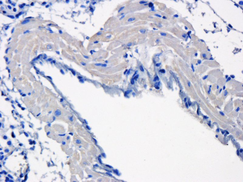 Immunohistochemical staining of mouse lung tissue using KLF2 antibody (dilution of primary antibody - 1:200)