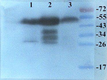 Western blot analysis of  Rat, Mouse Rat brain (Lane 1), Rat heart (Lane 2), Mouse heart (Lane 3) using  KLF2 antibody primary antibody at (1:200)