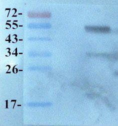 WB analysis of  Rat heart (Lane 1) using  KLF2 antibody dilution of primary antibody - (1:200)