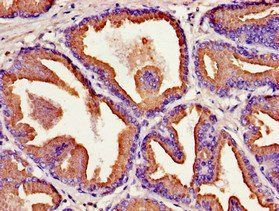 Immunohistochemical staining of human prostate tissue using KLK2 antibody