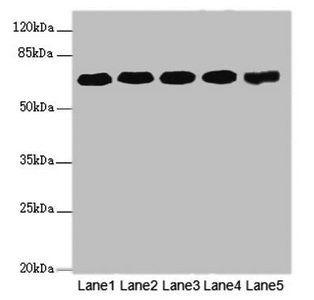 Western blot analysis of PC-3(lane 1), Hela(lane 2), U251(lane 3), 293T(lane 4) whole cell lysate, Mouse brain tissue(lane 5) using KPNA6 antibody