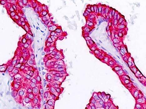 Immunohistochemical staining of paraffin embedded human prostate epithelium tissue using KRT18 antibody (primary antibody at 1:200)