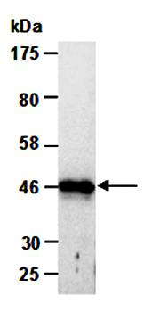 Western blot analysis of total cell extracts from human A431 using KRT18 antibody