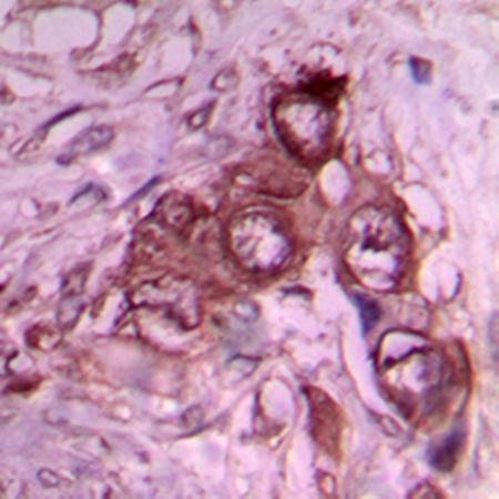 Immunohistochemical analysis of formalin-fixed and paraffin-embedded human breast cancer tissue using Laminin beta 1 antibody