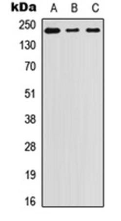 Western blot analysis of A431 (Lane1), SW480 (Lane2), PC3 (Lane3) whole cell using Laminin beta 1 antibody