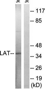 Western blot analysis of extracts from Jurkat cells using LAT antibody