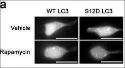 Western blot analysis of SH-SY5Y cellsusing LC3C (phospho-Ser12) antibody (primary antibody dilution at: 1:1000)