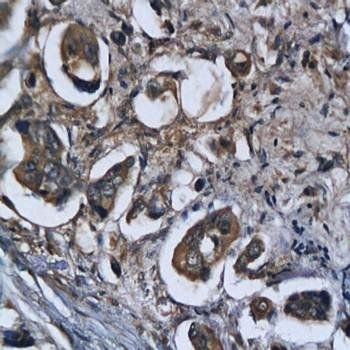 Immunohistochemical analysis of formalin-fixed and paraffin embedded human colorectal cancer tissue using Legumain antibody